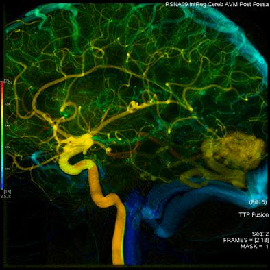 โปรแกรม AngioViz วิเคราะห์การไหลของหลอดเลือดผ่านการรับรองจาก FDA แล้ว