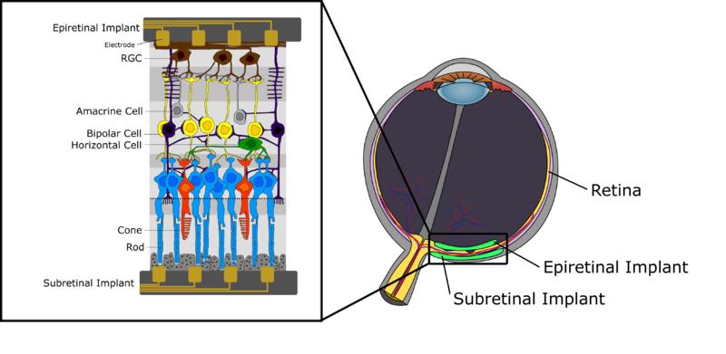 Retinal Implant RG
